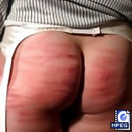 Big buxom buttocks striped and brusied from a severe caning